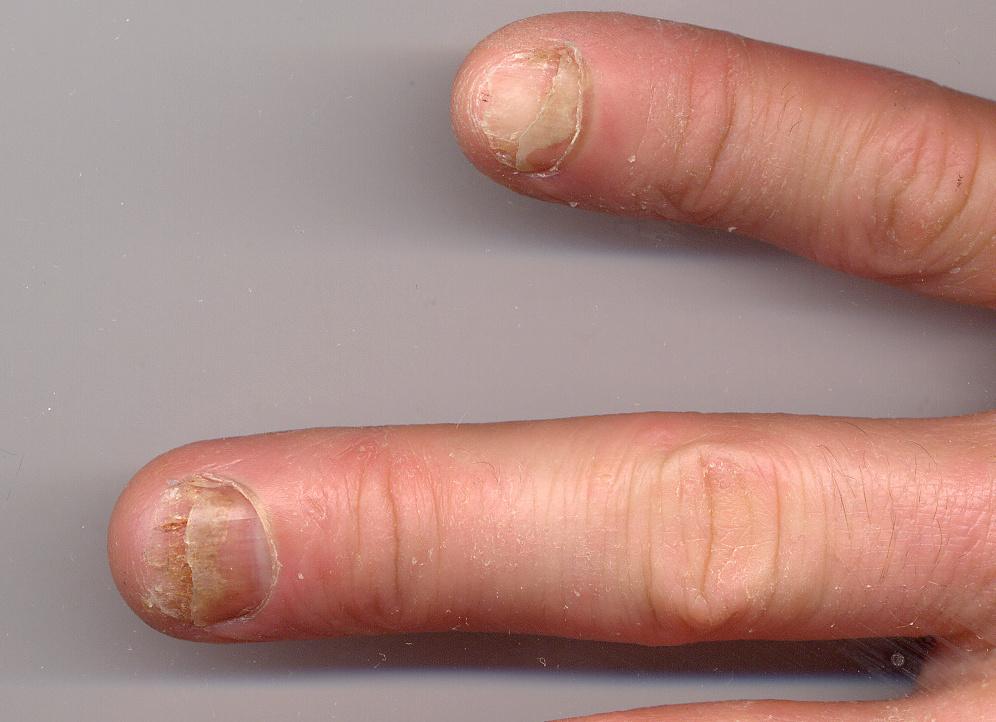 psoriasis-nails